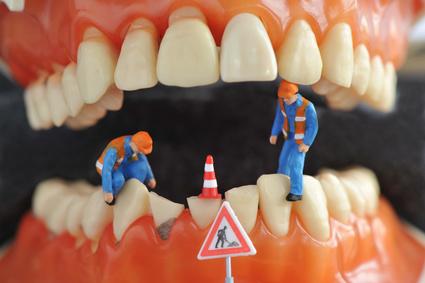 Zähne, Zahn, Zahnmodell, Symbol, Zahnpflege, Zahnarzt, Zahnbehandlung, Voranschlag, Kostenvoranschlag, Zahnersatz, Implantat, Implantation, Krone, Brücke, Zahnmedizin, Eigenanteil, Krankenkasse, Krankheit, Mund, Zahnfleisch, Gesundheit, Zuschuss, Heil- und Kostenplan, Heilplan, Kostenplan, Kostenübernahme, Kassenleistung, Kosten, Zahn, Zähne, Provisorium, Behandlungskosten, Mundhygiene, Zusatzversicherung, heilen, Heilung, Arzt, Doktor, Zahnbürste, Selbstbeteiligung, Zahnheilkunde, Prophylaxe, Hamburg, Juni 2015, Bild Nr.: N51193
